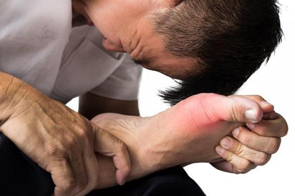 Những sai lầm phổ biến khi điều trị bệnh Gút