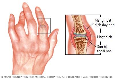 Cách phân biệt bệnh thoái hóa khớp và viêm khớp dạng thấp