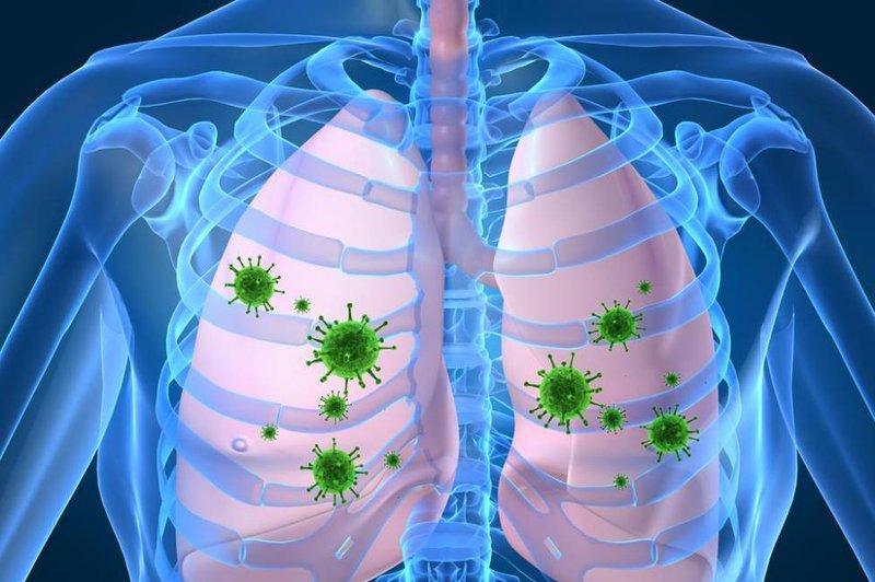 Virus Sars - Cov - 2 tàn phá phổi của người mắc Covid - 19 như thế nào?